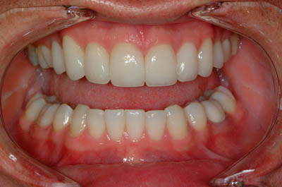 Dr. Andor's teeth after