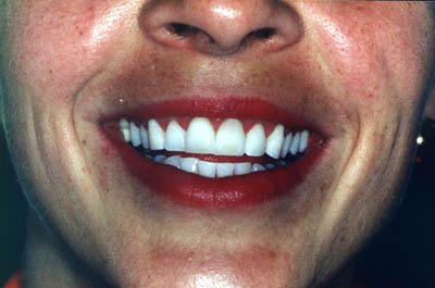 Anna after teeth whitening